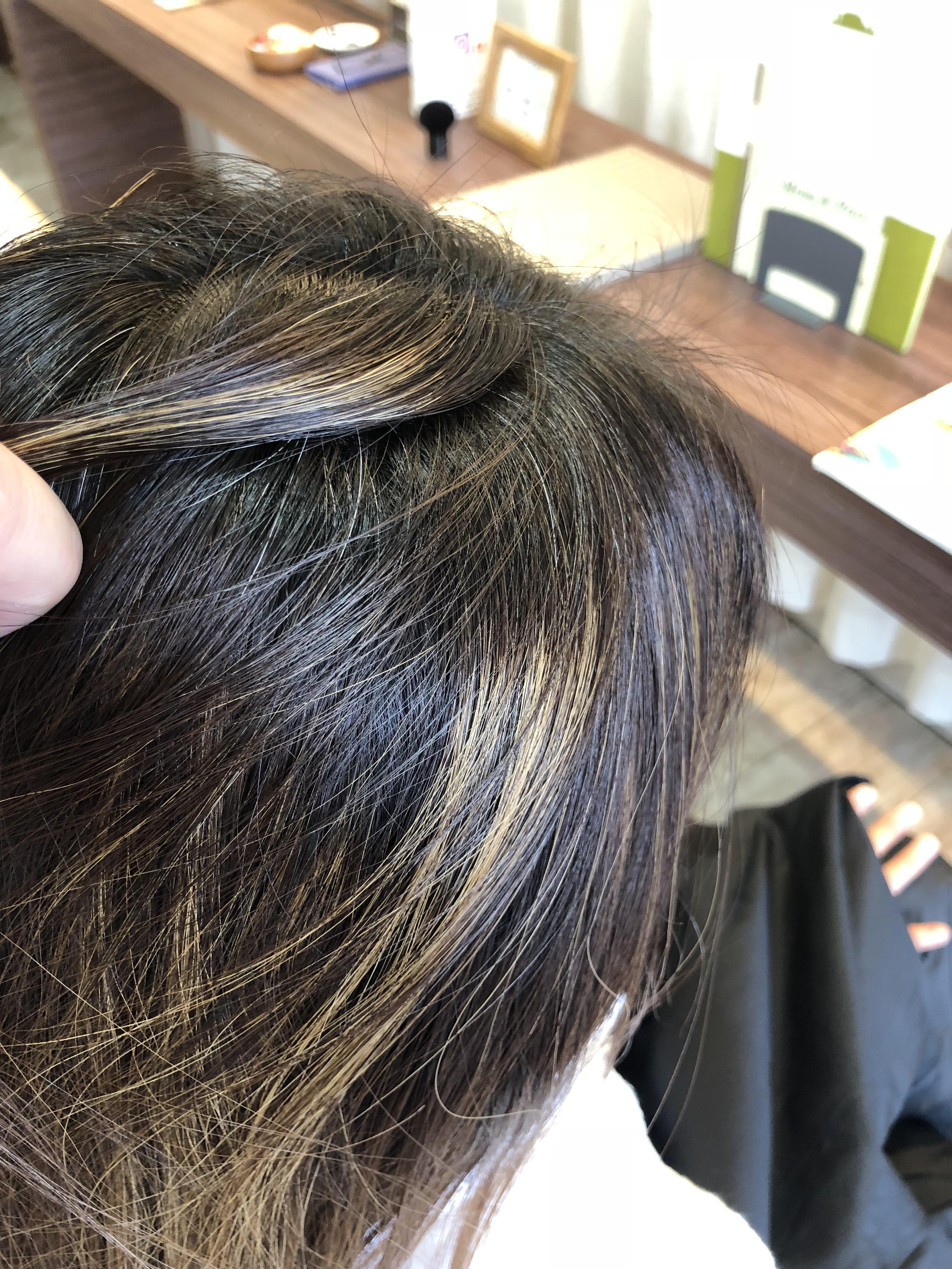 施術前のヘアスタイル(トップ新生部)